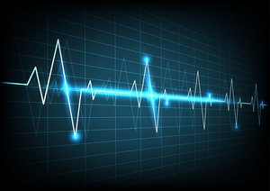 Grafica unui monitor prezentand bataile inimii